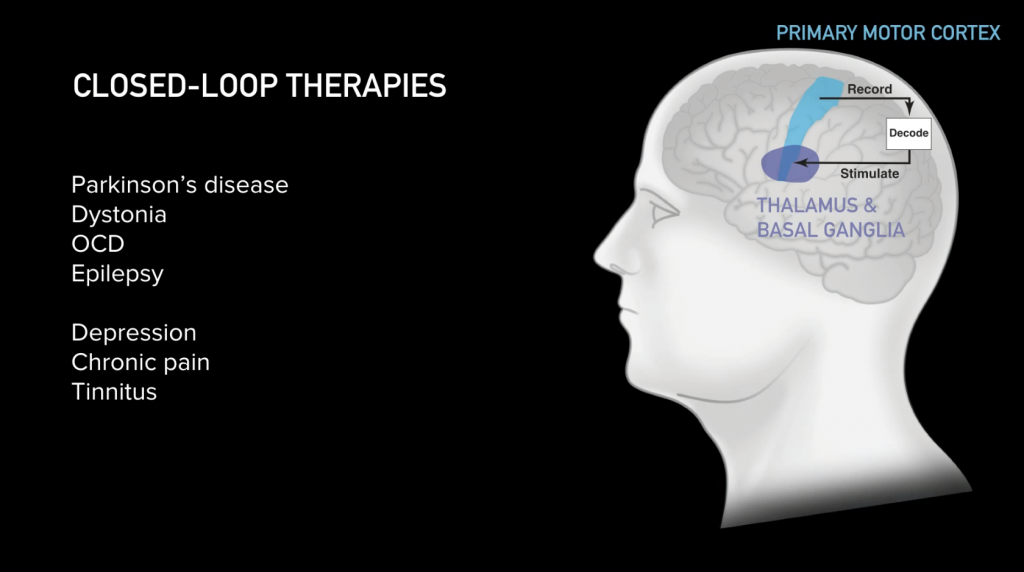 Closed-Loop therapies - Parkinson's / Dystoria / OCD / Epilepsy / Depression / Chronic pain / Tinnitus